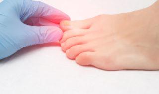 Nagelpilzinfektion kann die ganze Familie betreffen
